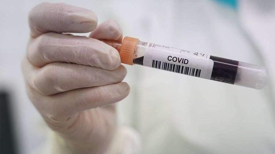 Центр CMD запустил тестирование на антитела к коронавирусу