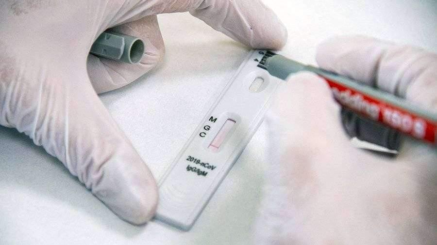 Российский тест на антитела к COVID-19 признан одним из самых точных в мире