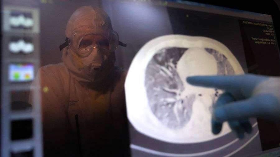 Роспотребнадзор назвал опасность курения при COVID-19