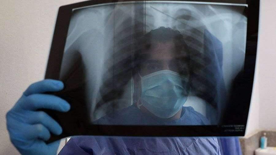 Пульмонолог назвал пять упражнений для укрепления дыхательной системы
