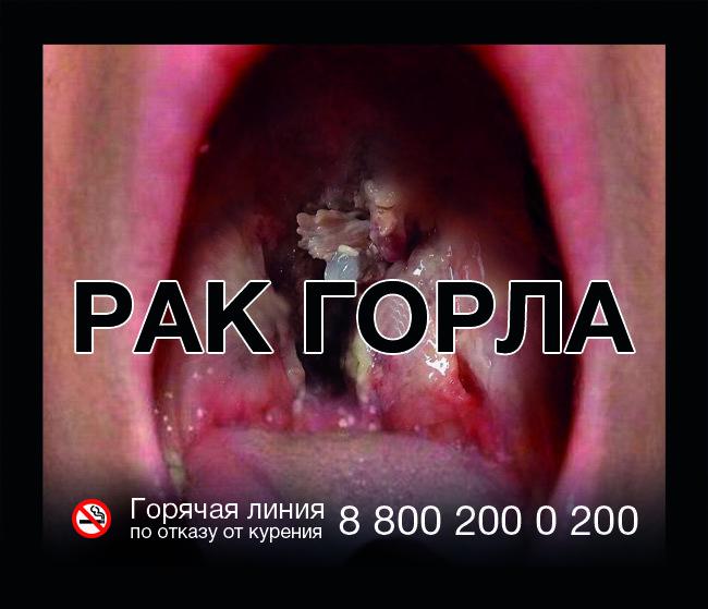 МЧС просит разместить на пачках сигарет фото сгоревших курильщиков