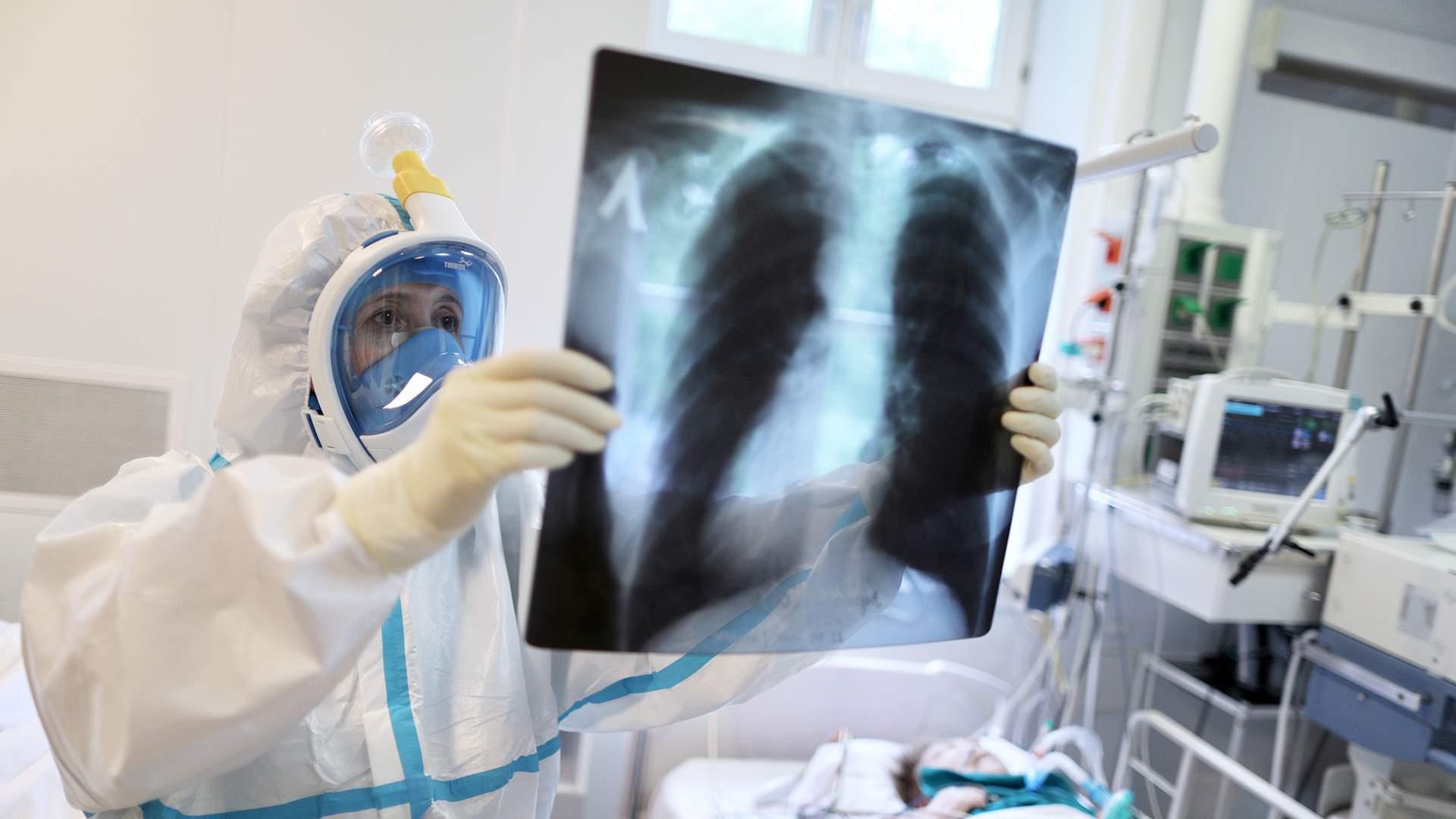 Перевести дыхание: найден метод сохранить легкие пациентов с COVID-19 |  Статьи | Известия