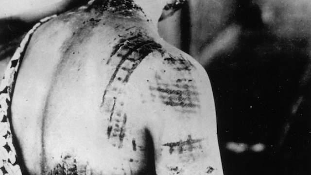 Десятки тысяч жертв, оказавшиеся вблизи эпицентра, сгорели дотла за секунды, а световое излучение было настолько мощным, что вжигало темные рисунки одежды в тела людей и оставляло следы-тени от человеческих фигур на стенах зданий.    Фото: ТАСС/ASSOCIATED PRESS