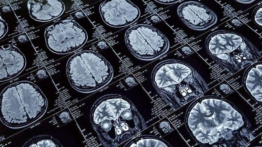 Ученые обнаружили новый тип шизофрении
