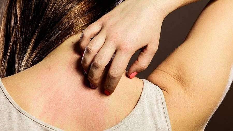Ученые выявили пять типов кожных проявлений COVID-19