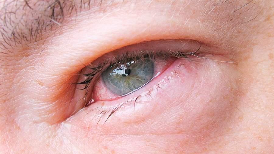Глаза при употреблении марихуаны как получить смолу с конопли